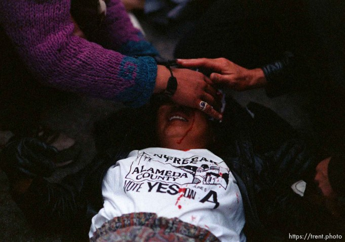 Girl who got hit in head with rock is cared for during riots and protests.