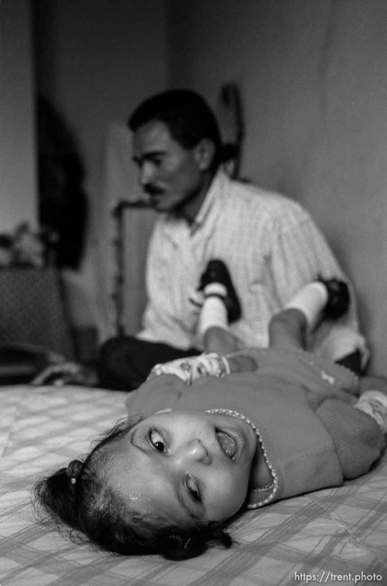 Bessy on bed, Jose in background. Formerly conjoined twins, Bessy and Doris Gonzales.
