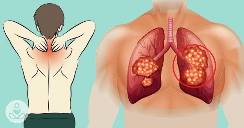 Учени назоваха най-раните видими симптоми на рак, които се появяват от 3 до 5 години преди развитието на онкологията