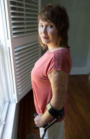 Scar tissue and skin grafts cover 70 percent of her body.