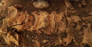 5. Foto de detall d'una columna vertebral amb diverses patologies.