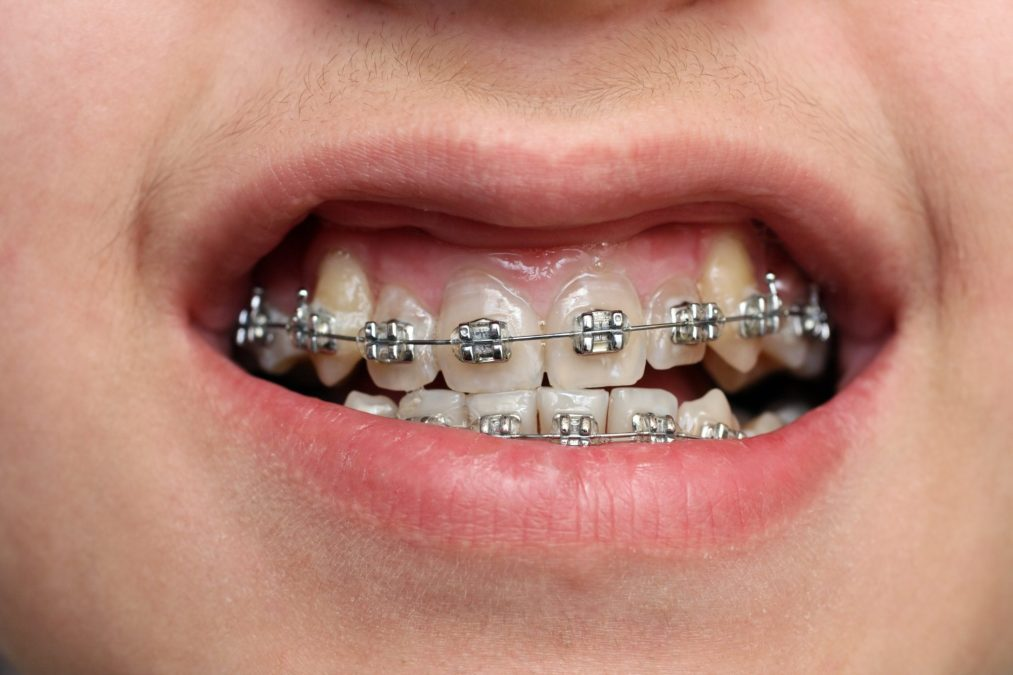 close-up view on children teeth with braces