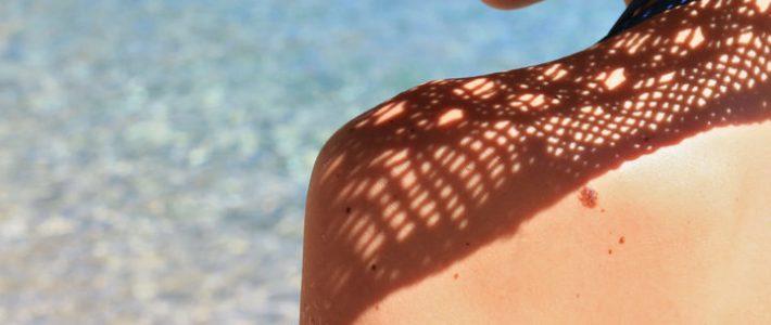 Nei in estate: perché tenerli sotto controllo