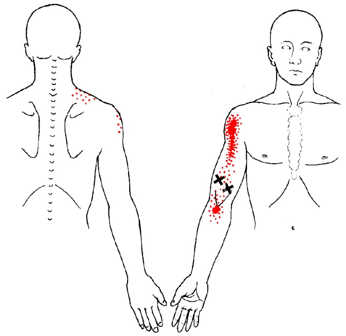 biceps brachii trigger points