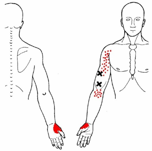 brachialis trigger points and referred pain
