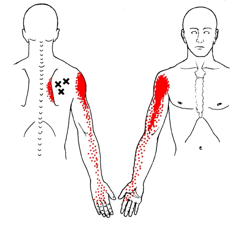 infraspinatus muscle trigger points