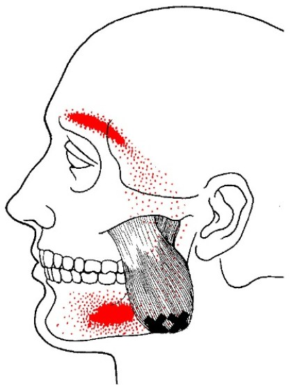 Masseter muscle trigger points