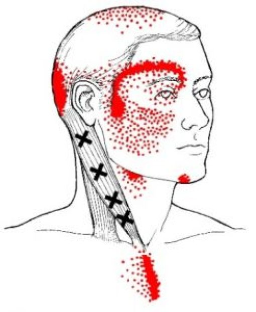 Sternocleidomastoid trigger points sternal branch