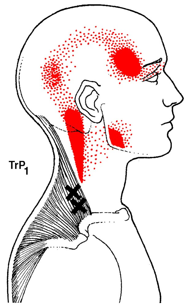 upper trapezius trigger points