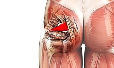 ¿Cómo puedes prevenir el síndrome del músculo piramidal?