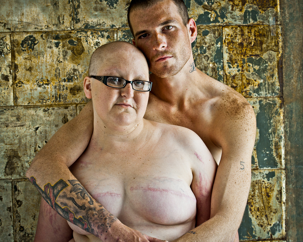 The SCAR Project - A Look at Breast Amputees  (5/6)
