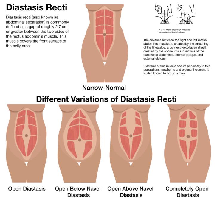 What is diastasis recti