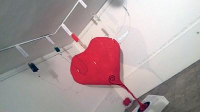 Srce Šibenika od sinoć je spojeno na infuziju