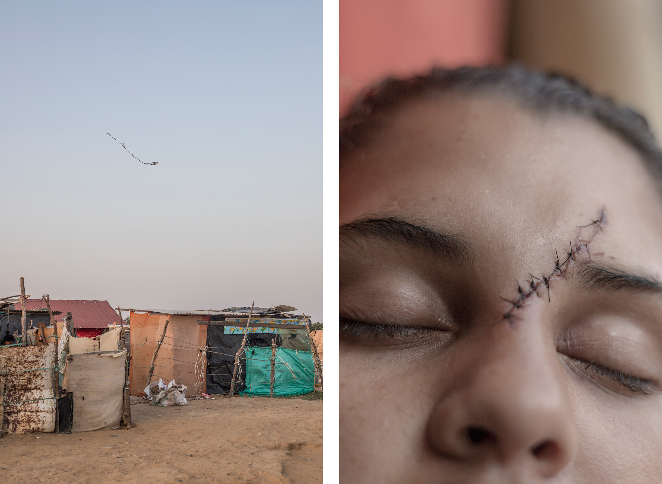 Martina, a teenage Venezuelan migrant. After a man slashed her face with a bottle for refusing his sexual advances, she is now in Colombian government care.