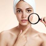 消除痘疤怎麼做?雷射、藥膏、保養3大方法+完美遮瑕術一次交給你!