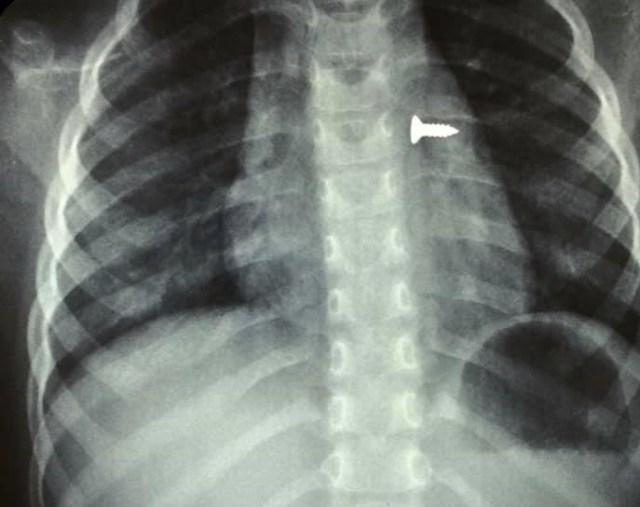 Ηράκλειο: Αφαίρεση βίδας από τον αριστερό πνεύμονα τρίχρονης (εικόνες)