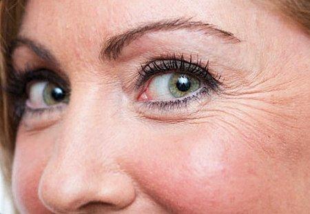 Arruguitas alrededor de los ojos