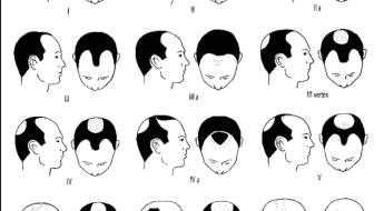 Greffes des cheveux