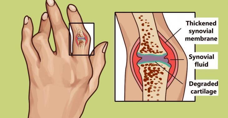 Découvrez ces méthodes vieilles de plus de 3 000 ans pour soulager l'arthrite rhumatoïde et l'inflammation!