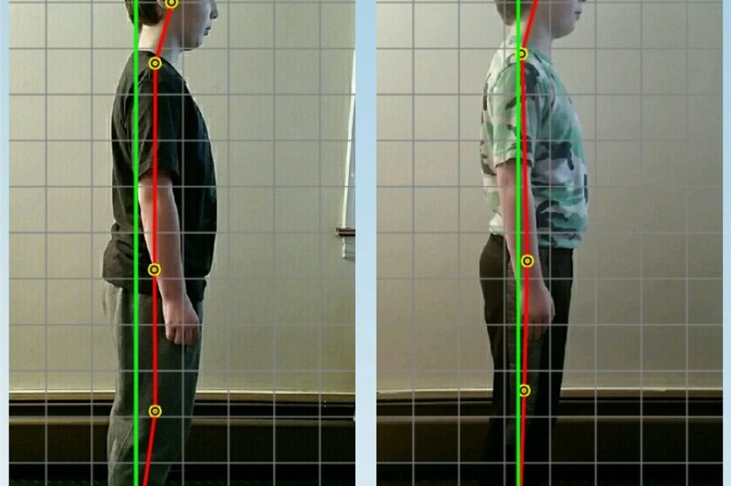 Posture improvement in a client shown in before and after photos after just two sessions.