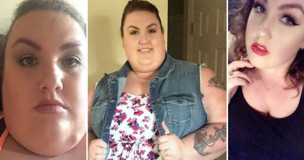171-Pound Weight Loss Has Totally Transformed This Woman's Face