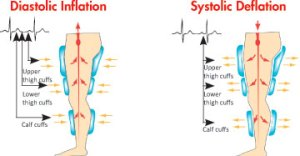Sequential_Inflation_And_Deflation_Of_Leg_Cuffs_During_Vasomedical_EECP®_Therapy