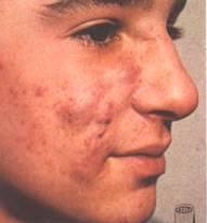Pantothenic Acid Vitamin B5 For Acne Jeffrey Dach Md