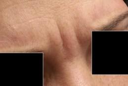 Botox Injections Wilson