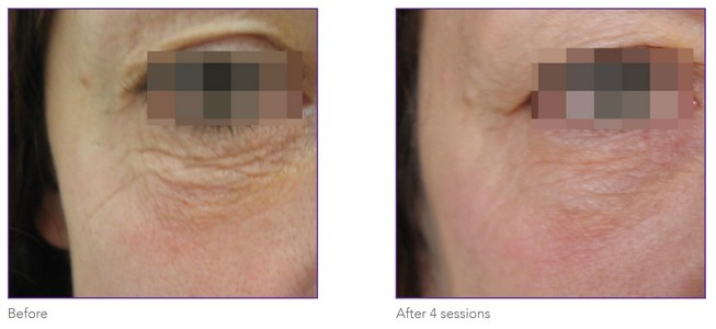 Skin tightening eye