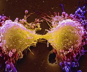 cellules cancereuses autodestruction traitement oncologie