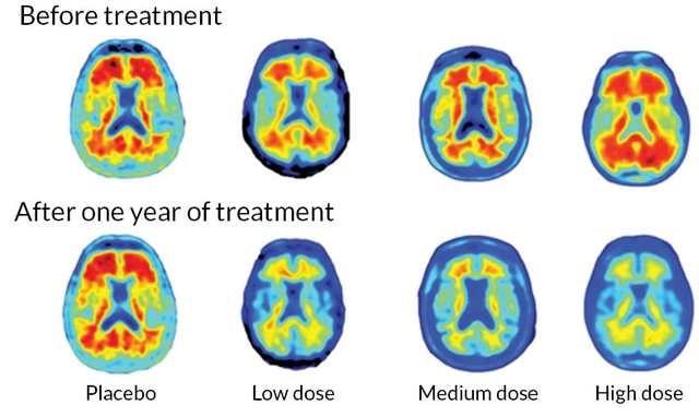 תרופה חדשה לחולי דמנציה ואלצהיימר: התרופה בדרך לאישור Aducanumab for Alzheimer's Resultats-aducanumab