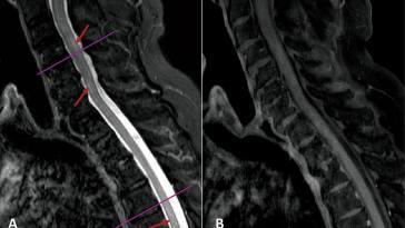 Mise en évidence d'un lien entre la COVID-19 et une pathologie neurologique rare