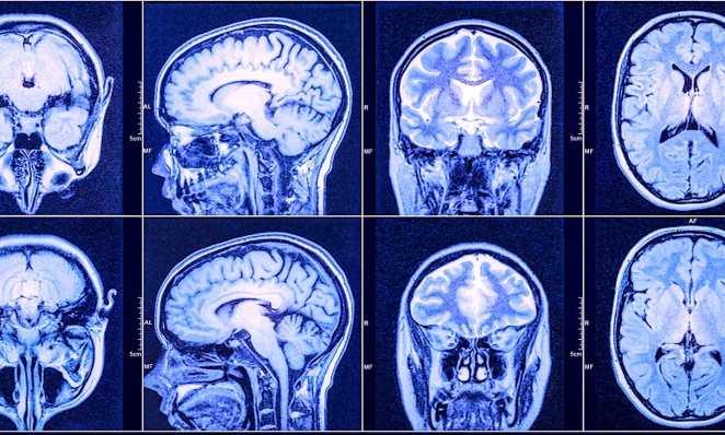 Un nouveau traitement prometteur contre le glioblastome, le cancer du cerveau le plus fréquent et agressif