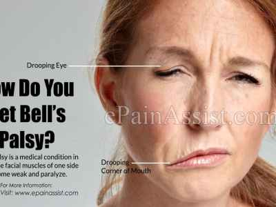 Woman with facial paralysis