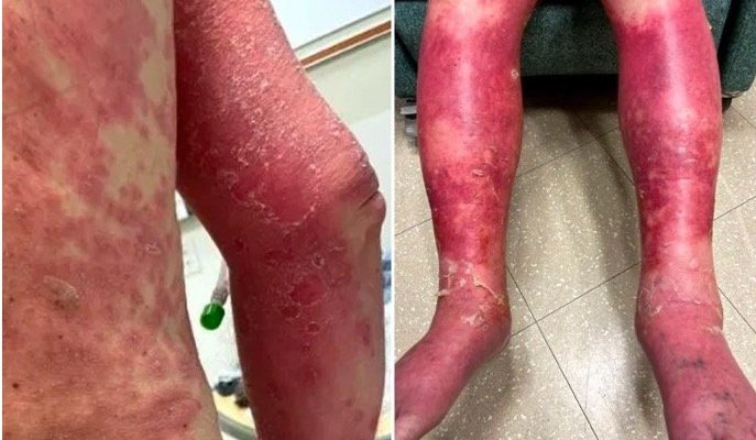 Man suffers sever skin reaction to vaccine