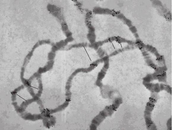 Исторический снимок впервые обнаруженных мобильных элементов дрозофилы (черные точки) , сделанный Е.В. Ананьевым в 1976 году (Georgiev G.P. et al. Isolation of eukaryotic DNA fragments containing structural genes and the adjacent sequences. Science. 1977)
