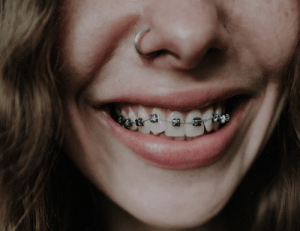 Can Braces Fix An Overbite?