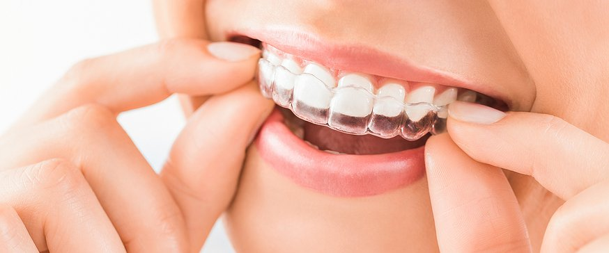 Read more about the article WHAT IS THE DIFFERENCE BETWEEN CLEAR ALIGNERS VS METAL BRACES FOR STRAIGHTENING TEETH?