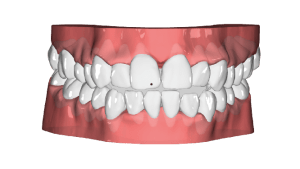 Beam 3D Treatment Plan