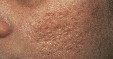 lighten acne scars confidential files