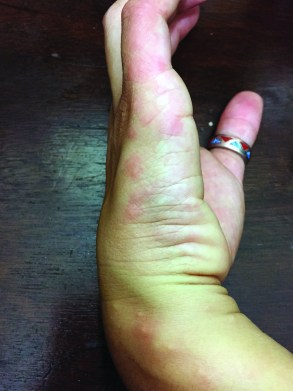 A hand with bed bug bites