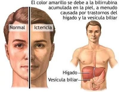 Valores Normales del Perfil Hepatico