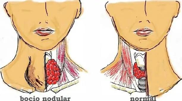 Nodulo Tiroides Sintomas