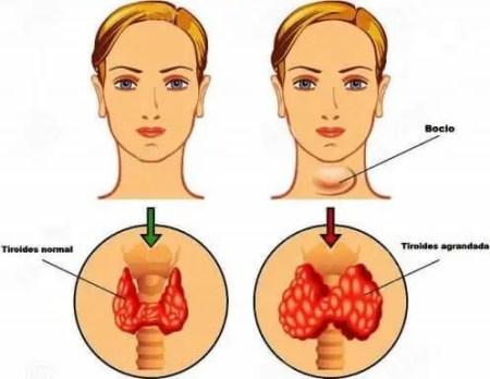 Sintomas de tiroides en mujeres hipotiroidismo