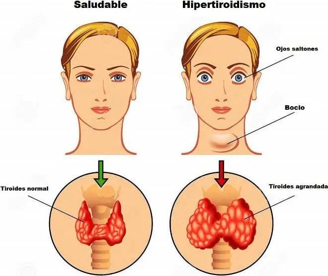 Sintomas de las tiroides