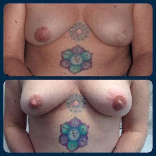tuenight tattoo nipple amy justen