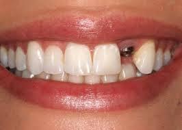 Reponer piezas pérdidas de la boca