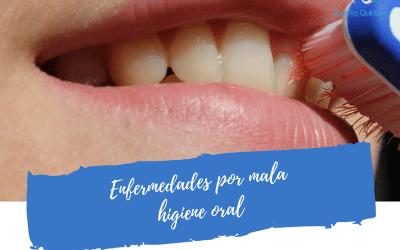 Enfermedades por mala higiene oral