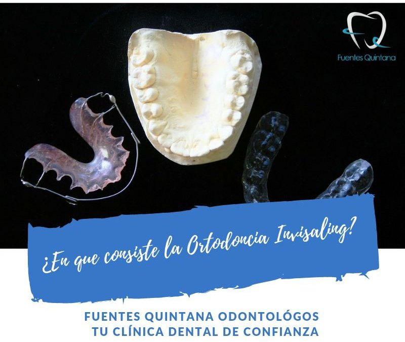 ¿En que consiste la Ortodoncia Invisaling?