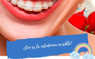 ¿Qué es la ortodoncia invisible – Invisalign?